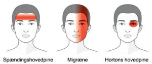 opkast og hovedpine